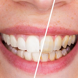 Teeth half before and half after teeth whitening