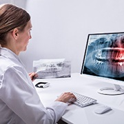 Implant dentist in Buckhead viewing an X-ray on a computer