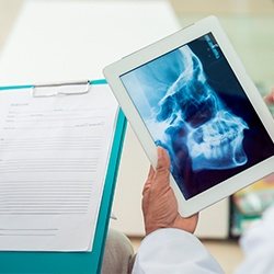 Skull and jawbone x-rays on tablet computer