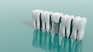Dental Implant with Teeth
