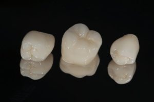 three dental crowns in Buckhead against black background